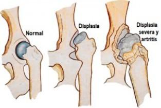 enfermedades de los huesos en los bulldogs displasia de cadera en perros bulldog ingles